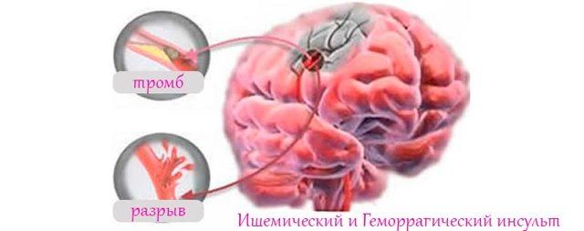 Инсульт: симптомы, первые признаки, лечение инсульта головного мозга