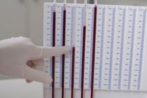 Эритроциты повышены у взрослого, о чем это говорит? Причины повышенного уровня эритроцитов у взрослых