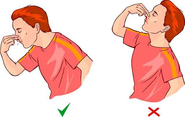 Почему часто идет кровь из носа у взрослого: причины, что делать