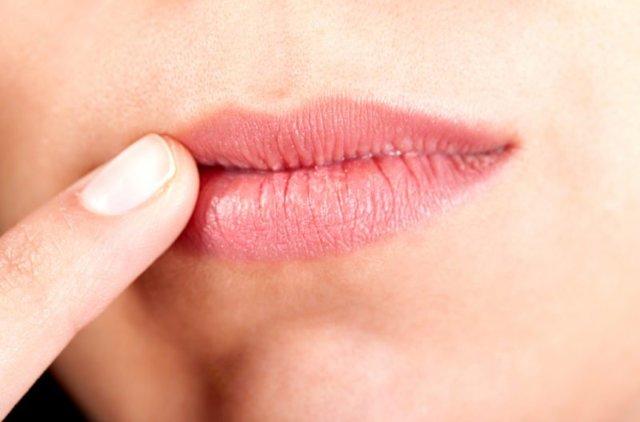 Заеды в уголках рта: причины и лечение. Как лечить заеды
