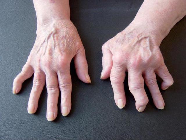 Боль в суставах пальцев рук: причины, лечение