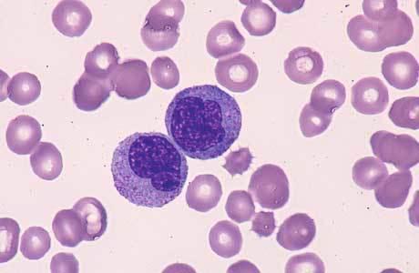 Моноциты повышены у взрослого, о чем это говорит? Причины повышенного уровня моноцитов у взрослых