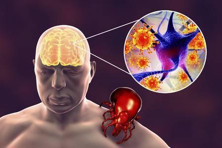Клещевой энцефалит: симптомы, признаки, лечение, профилактика энцефалита