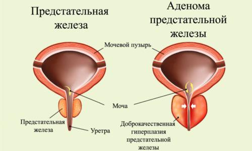 Боль при мочеиспускании у женщин: причины, лечение. Как лечить боль в конце мочеиспускания у мужчин