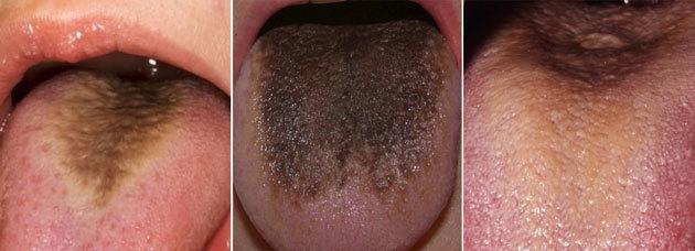 Коричневый налет на языке, причины коричневого налета