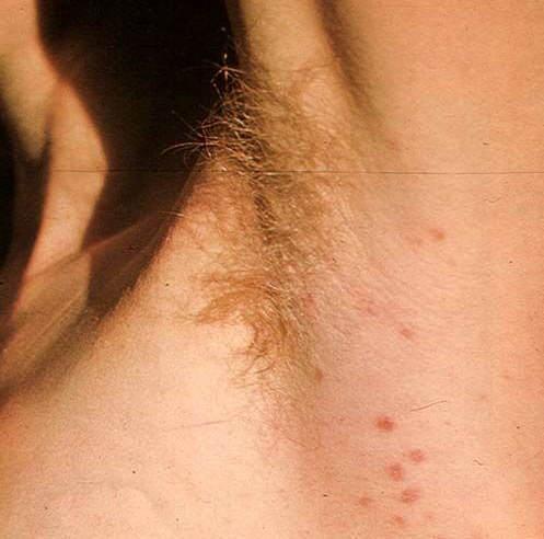 Вторичный сифилис: признаки, лечение вторичного периода сифилиса