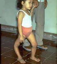 Полиомиелит: симптомы, последствия, профилактика полиомиелита