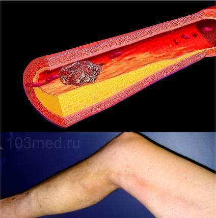 Тромбофлебит глубоких вен нижних конечностей: симптомы, лечение, фото