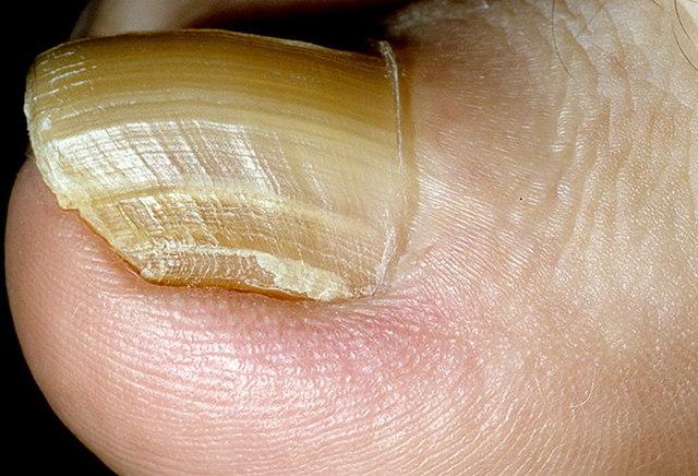 Грибок ногтей на руках: фото начальной стадии, лечение. Как выглядит и чем лечить грибок ногтей на руках