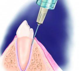 Использование местной анестезии в стоматологической практике