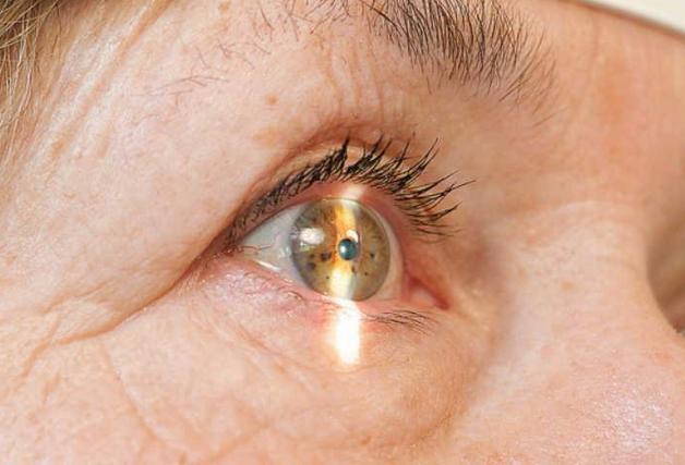 Вигамокс капли глазные: инструкция по применению, цена, аналоги, отзывы о Вигамоксе
