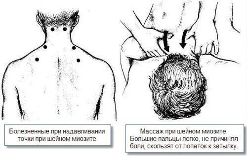 Продуло шею - что делать и как лечить в домашних условиях