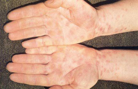 Сифилис: фото, симптомы и лечение сифилиса