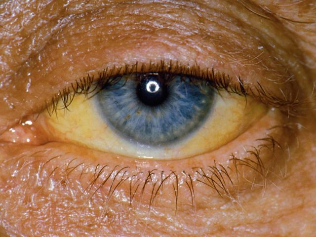 Желтые белки глаз: причины, лечение. Почему белки глаз желтого цвета