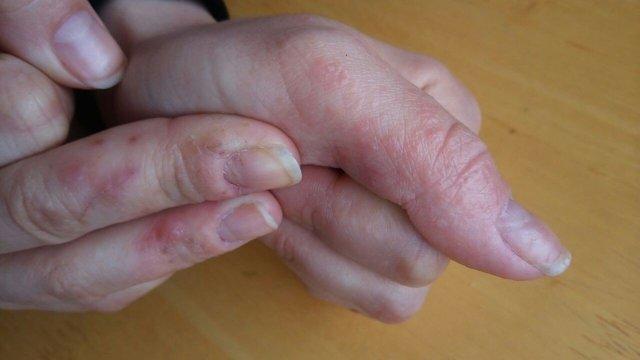 Трещины на пальцах рук: причины, лечение