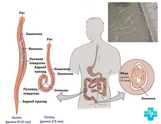 Глисты у взрослых: симптомы, признаки, лечение. Как избавиться от глистов