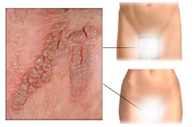 Кондиломы у женщин: фото, причины возникновения, лечение