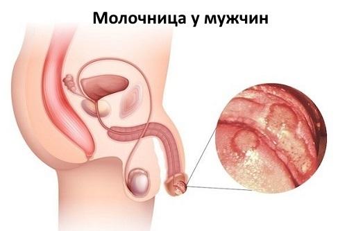 Молочница у мужчин фото, симптомы, лечение. Как лечить молочницу у мужчин