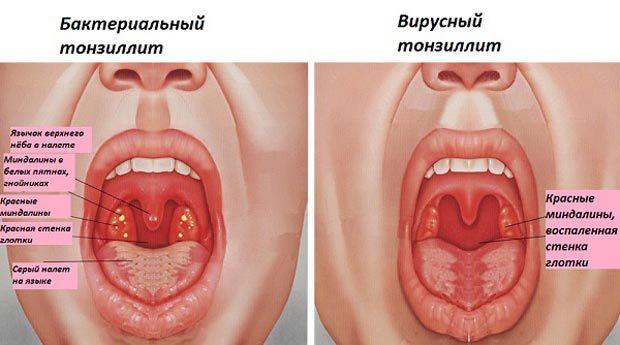 Тонзиллит: симптомы, фото, лечение тонзиллита у взрослых