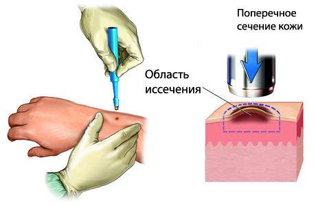 Красный плоский лишай: фото, лечение