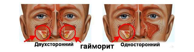 Прокол носа при гайморите: как делают, больно ли, последствия прокола