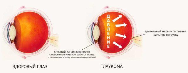 Дорзопт плюс: инструкция по применению, цена, отзывы, аналоги глазных капель Дорзопт плюс