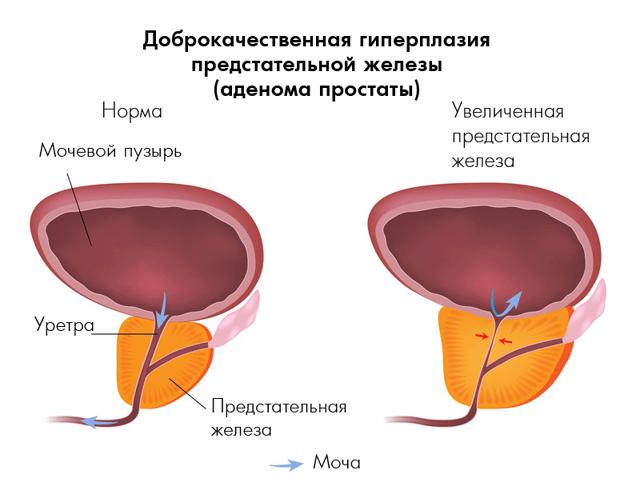 Ревалгин: инструкция по применению, цена, отзывы, аналоги таблеток, уколов Ревалгин