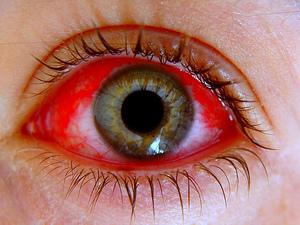 Вирус Коксаки: фото, симптомы и лечение вируса Коксаки у взрослых