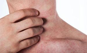 Лишай у человека: фото, признаки и лечение, как лечить лишай у человека