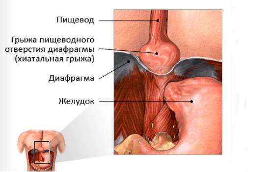 Грыжа пищевода: симптомы, лечение, операция по удалению