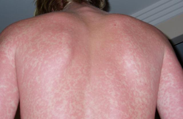 Краснуха: фото, симптомы, лечение, профилактика краснухи