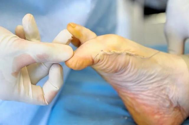 Косточка на большом пальце ноги: лечение в домашних условиях, операция, что делать, если болит и растет косточка на ноге