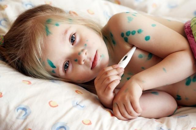 Чем можно мазать сыпь при ветрянке у детей, кроме зеленки? Сколько дней, раз мазать ветрянку зеленкой