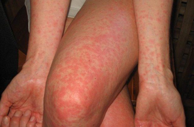 Аллергия на антибиотики, аллергия после антибиотиков: лечение