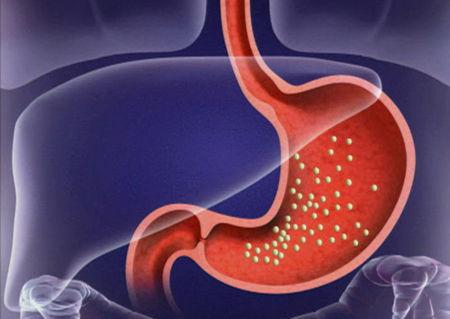 Острый гастрит, симптомы и лечение острого гастрита