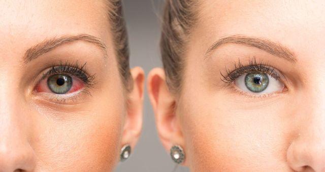 Визин: инструкция по применению, цена, аналоги, отзывы о глазных каплях Визин