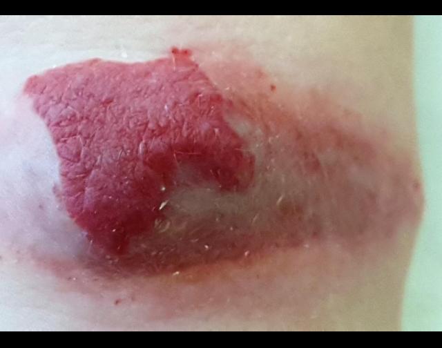 Гемангиома: фото, симптомы, лечение гемангиомы