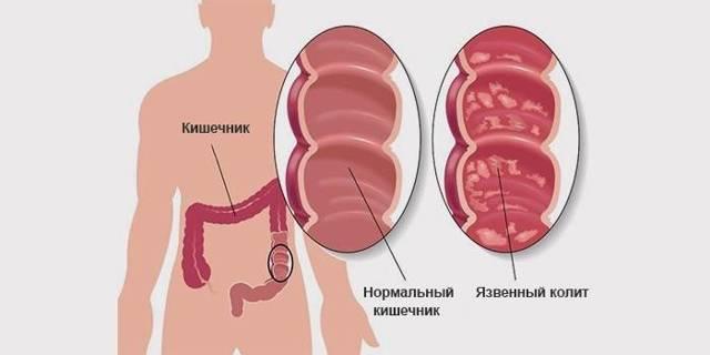 Колит: симптомы, лечение колита кишечника