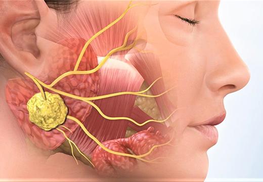 Заглоточный абсцесс: симптомы, лечение