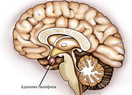 Акромегалия: причины, симптомы, лечение акромегалии
