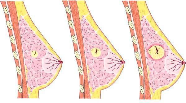 Фиброаденома молочной железы: что это такое, как лечить, операция по удалению, лечение фиброаденомы