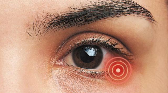 Баларпан: инструкция по применению, цена, отзывы, аналоги глазных капель Баларпан