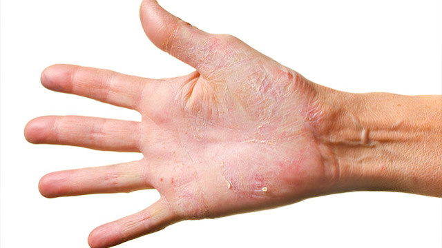 Псориаз на руках: фото начальной стадии, лечение. Чем лечить псориаз на руках, пальцах рук