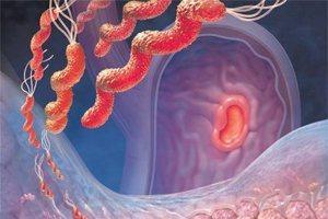 Атрофический гастрит: симптомы и лечение