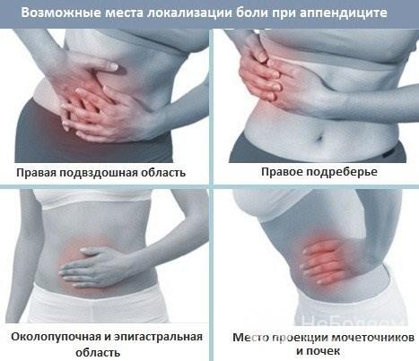 Острый аппендицит: симптомы, признаки, лечение