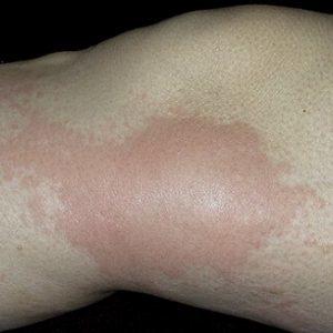 Васкулит: что это за болезнь, фото, симптомы, лечение васкулита