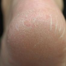 От чего возникают трещины на пятках и как их лечить