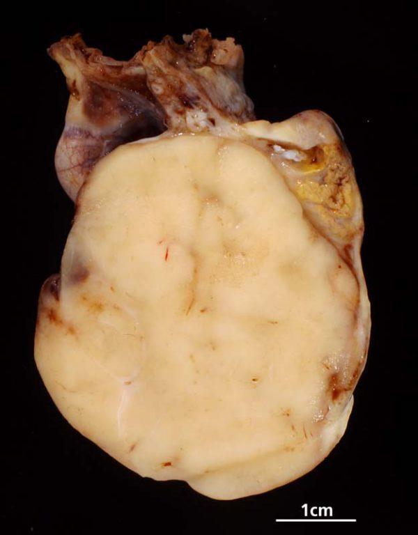 Рак яичников: симптомы у женщин, первые признаки, лечение, прогноз