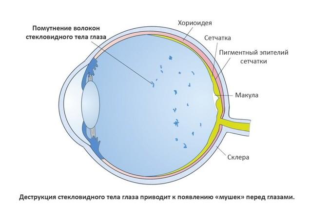 Мушки перед глазами: причины, лечение. Почему мелькают черные мушки перед глазами
