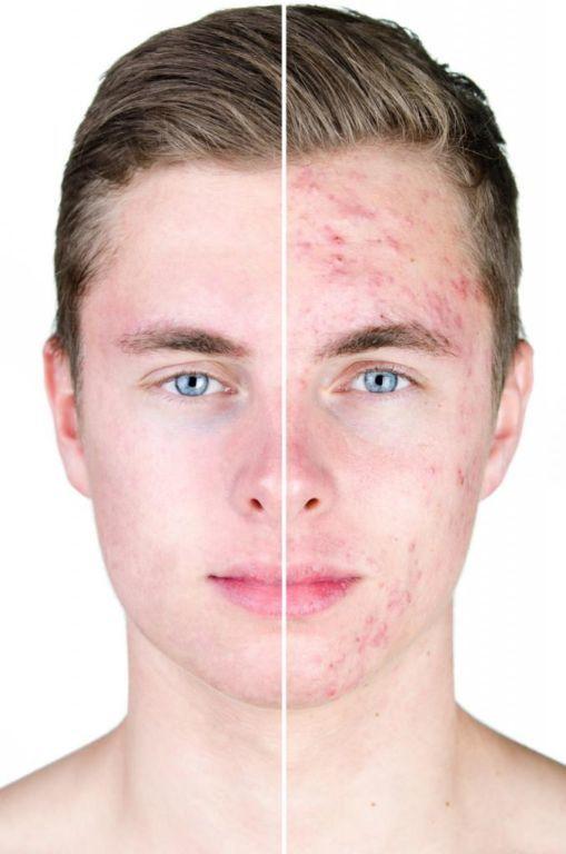 Ретинола ацетат: инструкция по применению, цена, отзывы, аналоги. Ретинола ацетат для кожи лица отзывы
